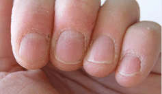 Healing Ragged and Cracked Cuticles